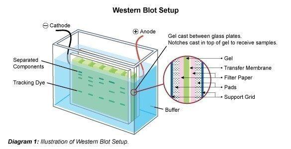 Western Blot Setup